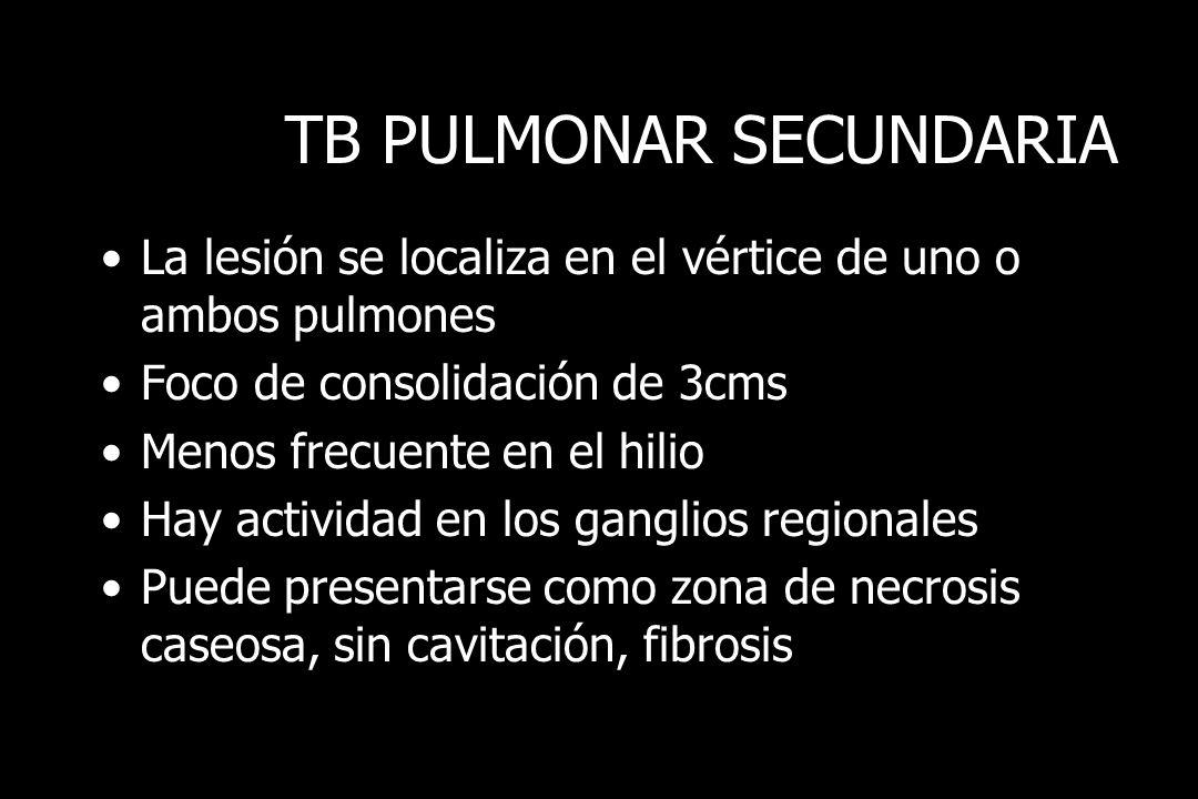 TB PULMONAR SECUNDARIA La lesión se localiza en el vértice de uno o ambos pulmones Foco de consolidación de 3cms Menos frecuente en el hilio Hay activ
