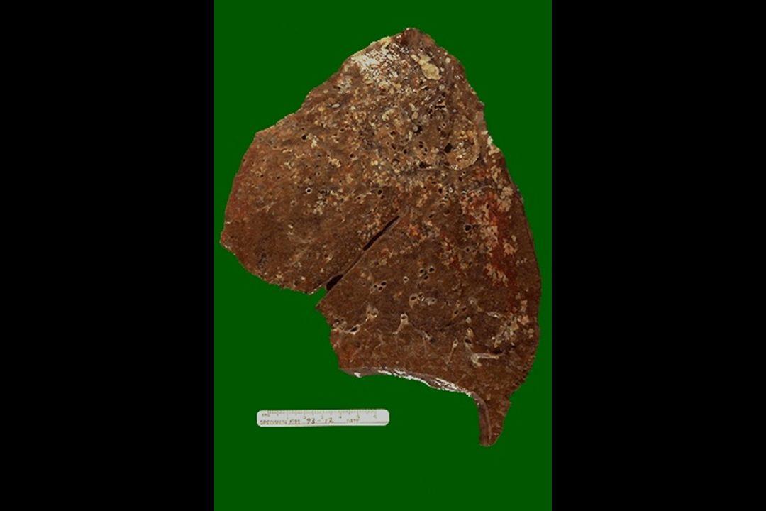 NEUMOCONIOSIS DE LOS TRABAJADORES DEL CARBON COMPLICADA(FMP) Años para su desarrollo Cicatrices múltiples de 2-10 cms Micro= Colágeno denso + pigmento con centro necrótico