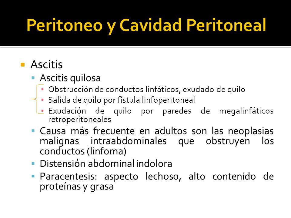 Ascitis Ascitis quilosa Obstrucción de conductos linfáticos, exudado de quilo Salida de quilo por fístula linfoperitoneal Exudación de quilo por pared