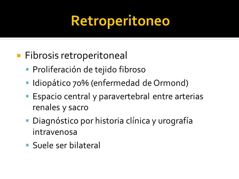 Fibrosis retroperitoneal Proliferación de tejido fibroso Idiopático 70% (enfermedad de Ormond) Espacio central y paravertebral entre arterias renales