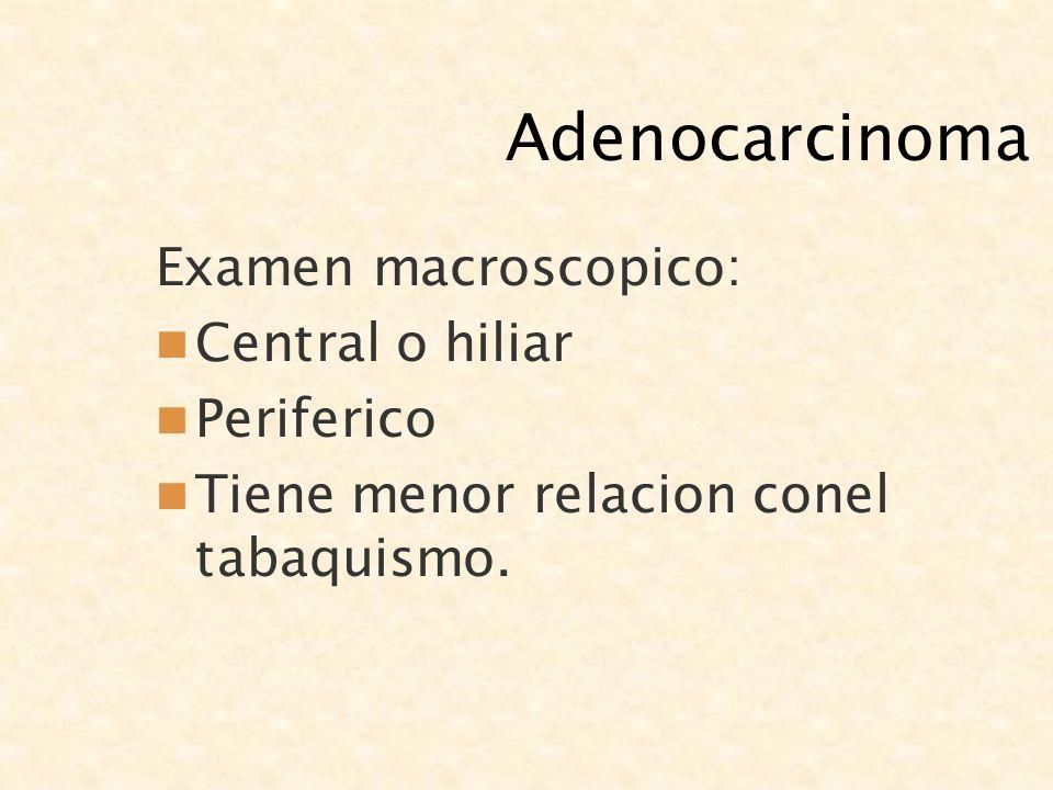 Adenocarcinoma Examen macroscopico: Central o hiliar Periferico Tiene menor relacion conel tabaquismo.