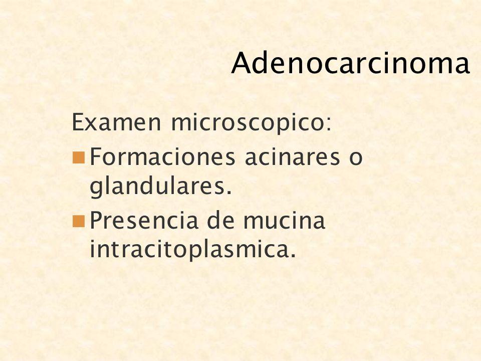 Adenocarcinoma Examen microscopico: Formaciones acinares o glandulares. Presencia de mucina intracitoplasmica.