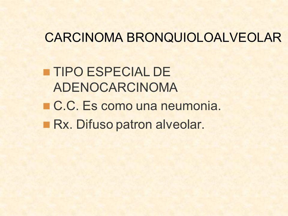 CARCINOMA BRONQUIOLOALVEOLAR TIPO ESPECIAL DE ADENOCARCINOMA C.C. Es como una neumonia. Rx. Difuso patron alveolar.
