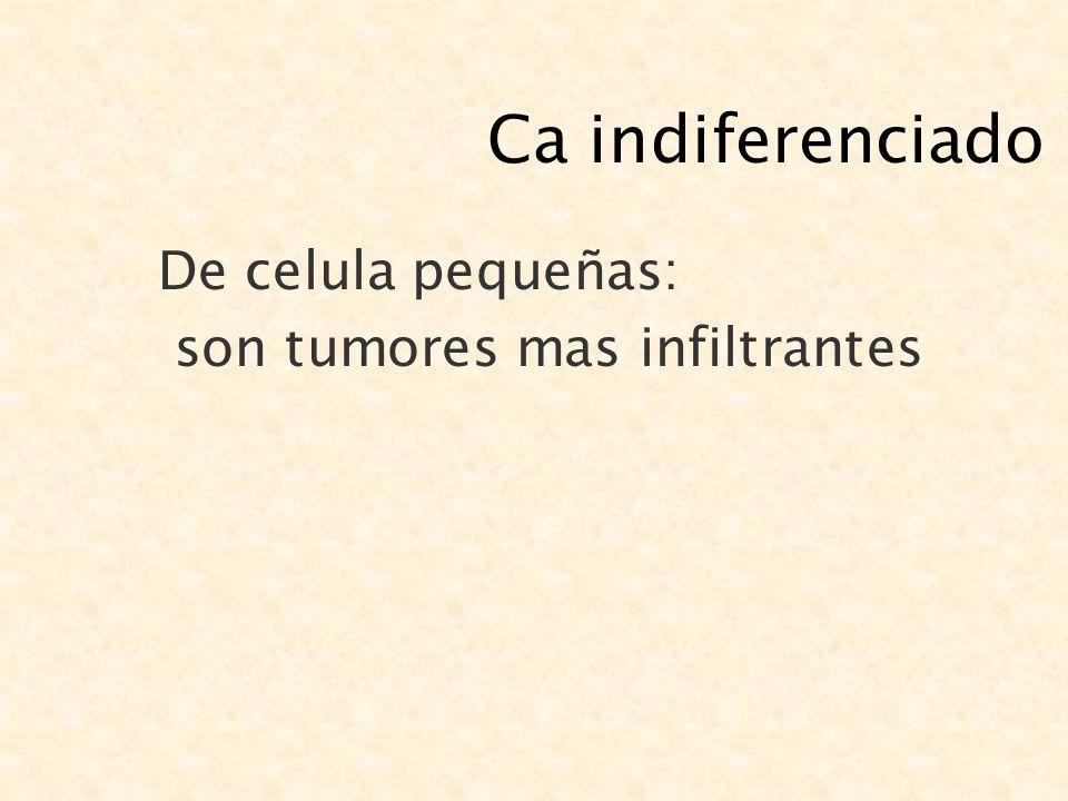 Ca indiferenciado De celula pequeñas: son tumores mas infiltrantes