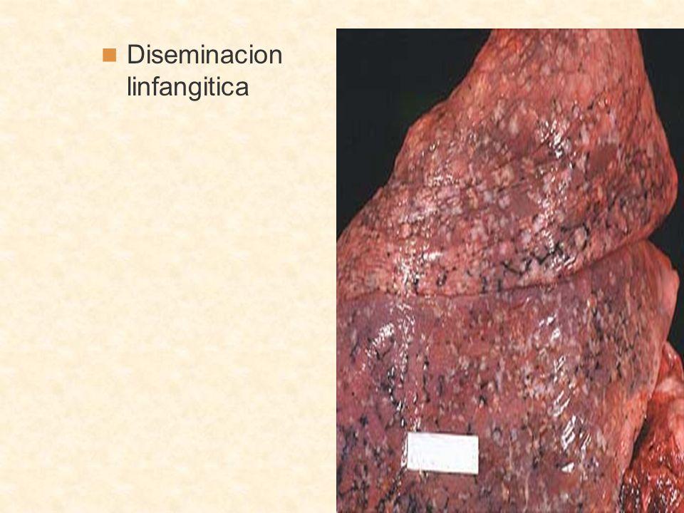 Diseminacion linfangitica