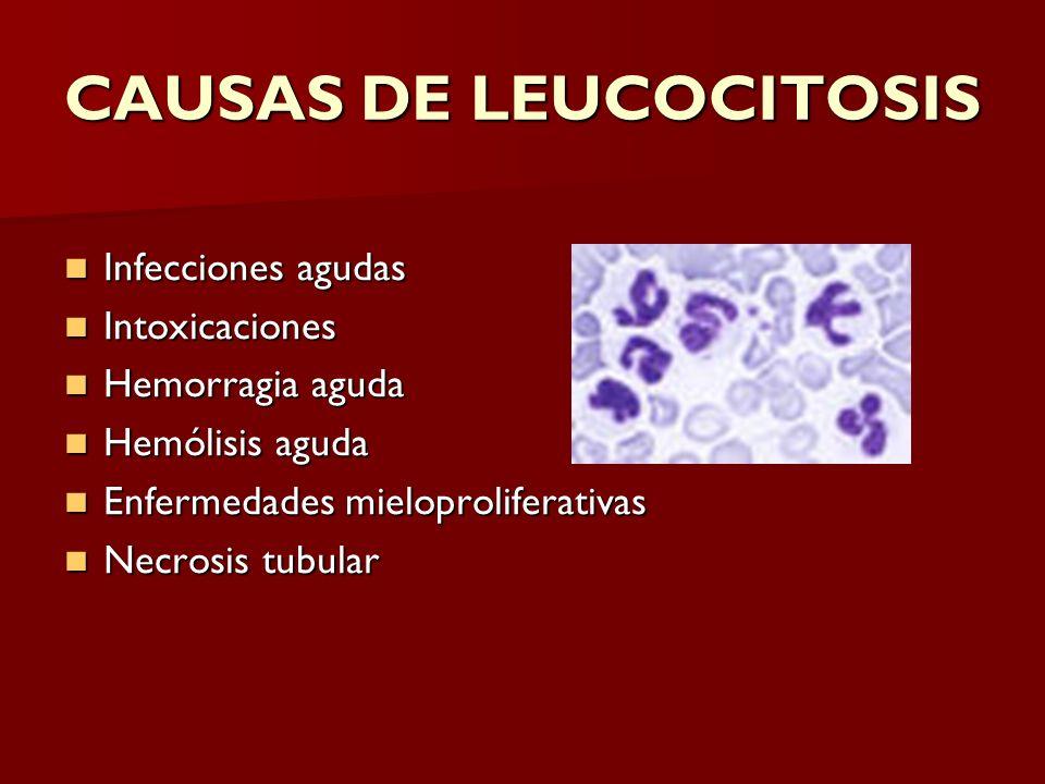 CAUSAS DE LEUCOCITOSIS Infecciones agudas Infecciones agudas Intoxicaciones Intoxicaciones Hemorragia aguda Hemorragia aguda Hemólisis aguda Hemólisis