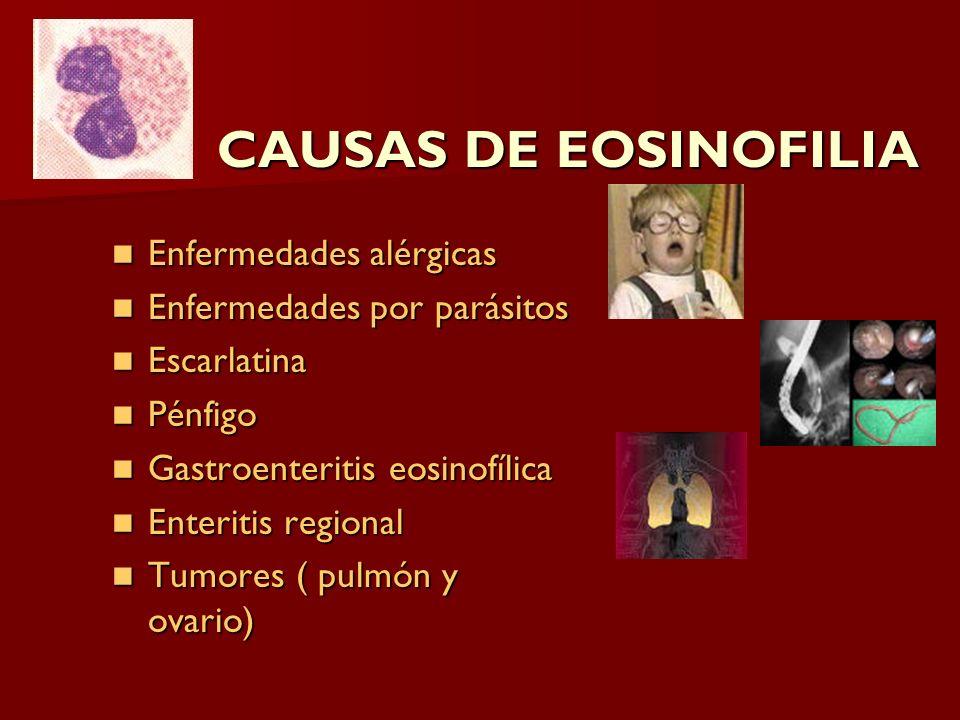 CAUSAS DE EOSINOFILIA Enfermedades alérgicas Enfermedades alérgicas Enfermedades por parásitos Enfermedades por parásitos Escarlatina Escarlatina Pénf
