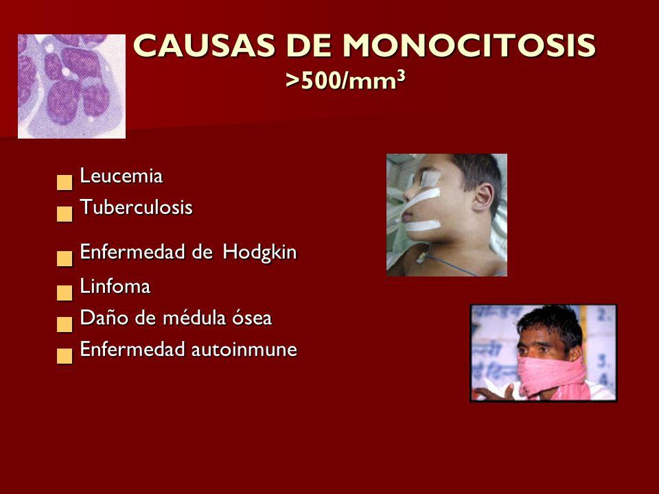 CAUSAS DE MONOCITOSIS >500/mm 3 CAUSAS DE MONOCITOSIS >500/mm 3 Leucemia Leucemia Tuberculosis Tuberculosis Enfermedad de Hodgkin Enfermedad de Hodgki