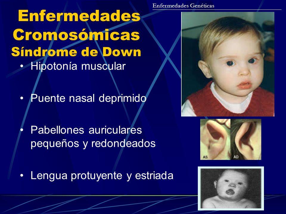 Enfermedades Cromosómicas Síndrome de Down Hipotonía muscular Puente nasal deprimido Pabellones auriculares pequeños y redondeados Lengua protuyente y