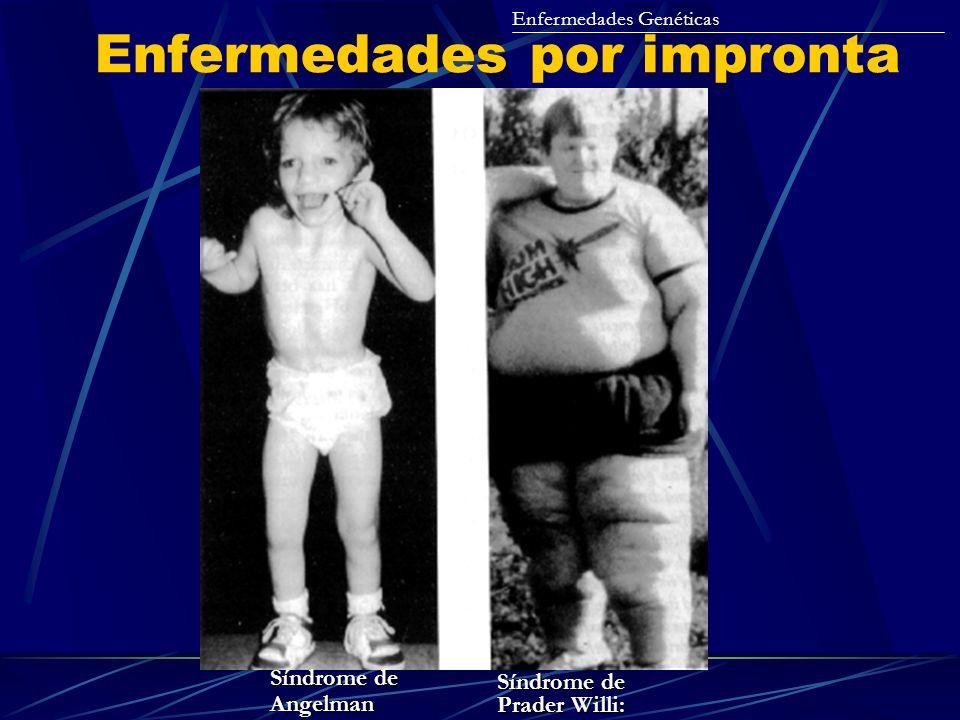 Enfermedades por impronta Enfermedades Genéticas Síndrome de Prader Willi: Síndrome de Angelman