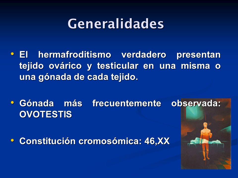 Generalidades Generalidades El hermafroditismo verdadero presentan tejido ovárico y testicular en una misma o una gónada de cada tejido. El hermafrodi