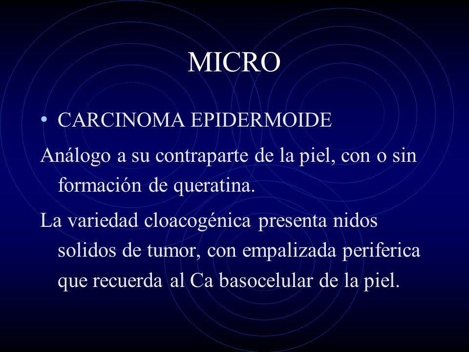 MICRO CARCINOMA EPIDERMOIDE Análogo a su contraparte de la piel, con o sin formación de queratina. La variedad cloacogénica presenta nidos solidos de