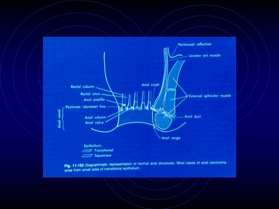 PRONOSTICO Depende mucho del estadio de la lesion, y esta determinado por la profundidad de la invasion y envolucro ganglional regional.