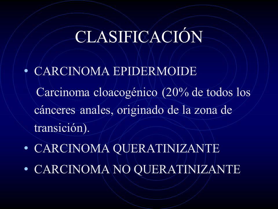CLASIFICACIÓN CARCINOMA EPIDERMOIDE Carcinoma cloacogénico (20% de todos los cánceres anales, originado de la zona de transición). CARCINOMA QUERATINI
