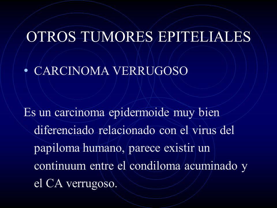 OTROS TUMORES EPITELIALES CARCINOMA VERRUGOSO Es un carcinoma epidermoide muy bien diferenciado relacionado con el virus del papiloma humano, parece e
