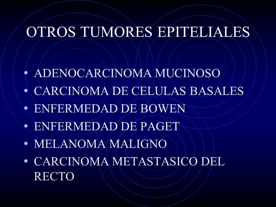 OTROS TUMORES EPITELIALES ADENOCARCINOMA MUCINOSO CARCINOMA DE CELULAS BASALES ENFERMEDAD DE BOWEN ENFERMEDAD DE PAGET MELANOMA MALIGNO CARCINOMA META