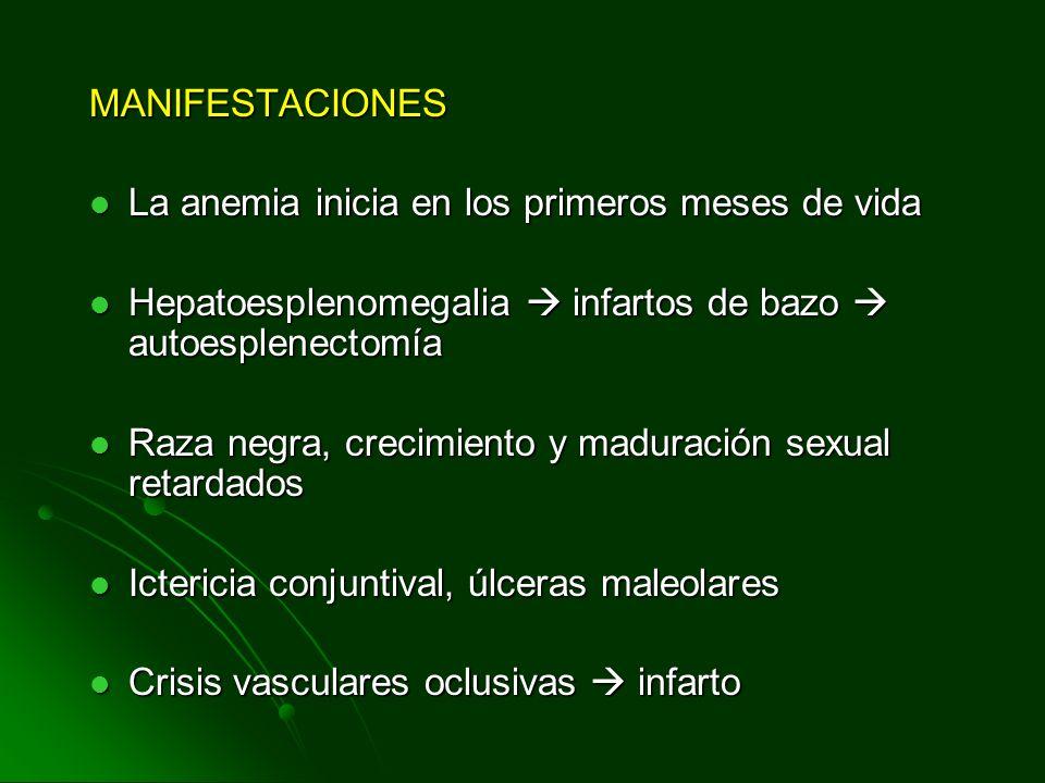MANIFESTACIONES La anemia inicia en los primeros meses de vida La anemia inicia en los primeros meses de vida Hepatoesplenomegalia infartos de bazo au