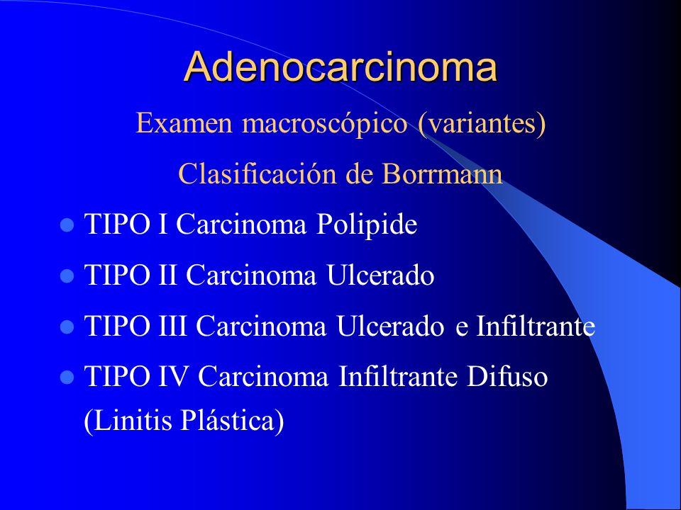 Adenocarcinoma Examen macroscópico (variantes) Clasificación de Borrmann TIPO I Carcinoma Polipide TIPO II Carcinoma Ulcerado TIPO III Carcinoma Ulcer