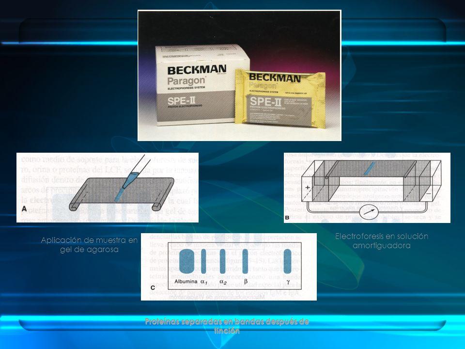 Aplicación de muestra en gel de agarosa Electroforesis en solución amortiguadora Proteínas separadas en bandas después de tinción