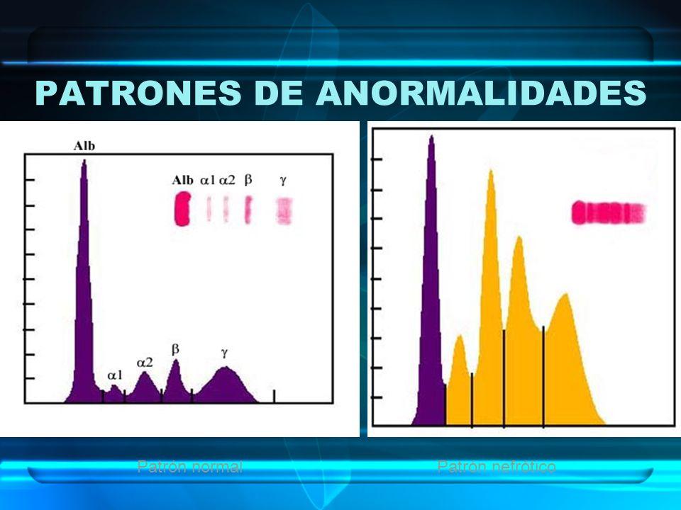 PATRONES DE ANORMALIDADES Patrón normalPatrón nefrótico
