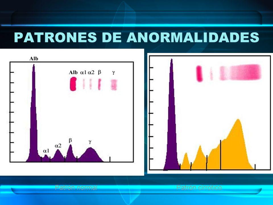 PATRONES DE ANORMALIDADES Patrón normalPatrón cirrótico