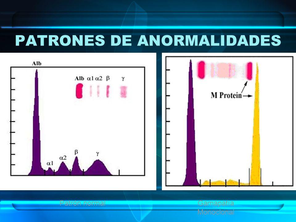 PATRONES DE ANORMALIDADES Patrón normalGamapatía Monoclonal
