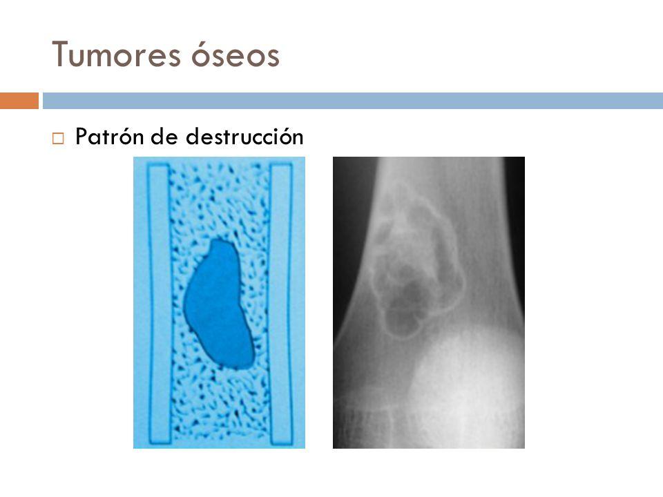 Tumores óseos Patrón de destrucción