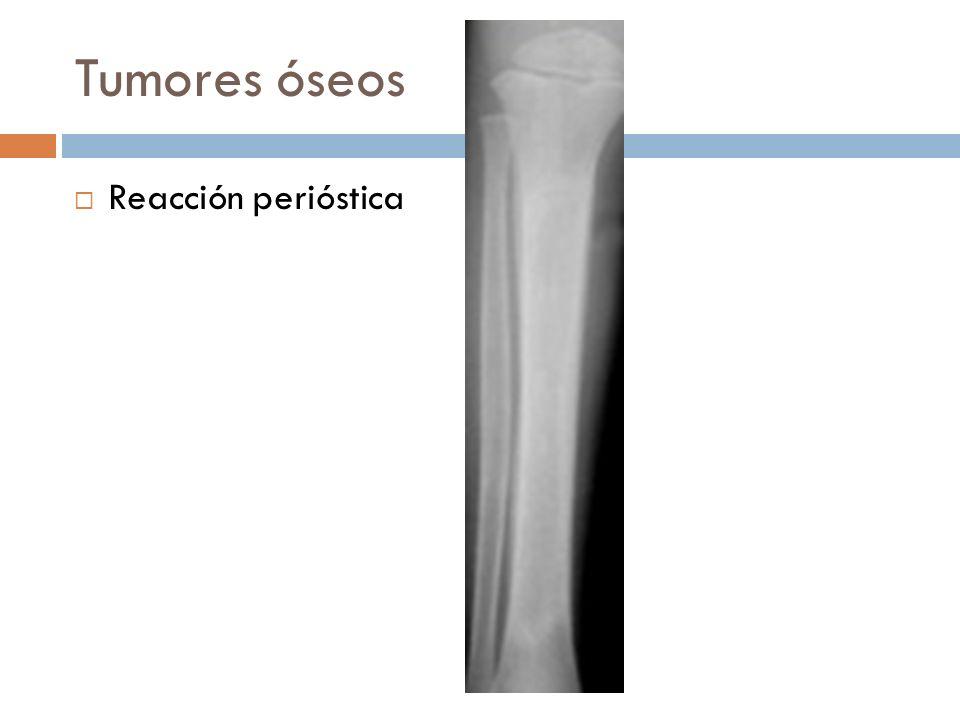 Tumores óseos Reacción perióstica