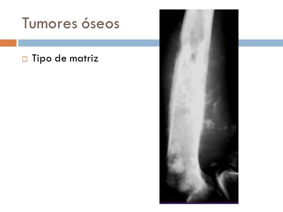Tumores óseos Tipo de matriz