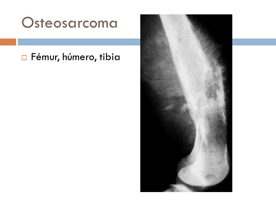 Osteosarcoma Fémur, húmero, tibia