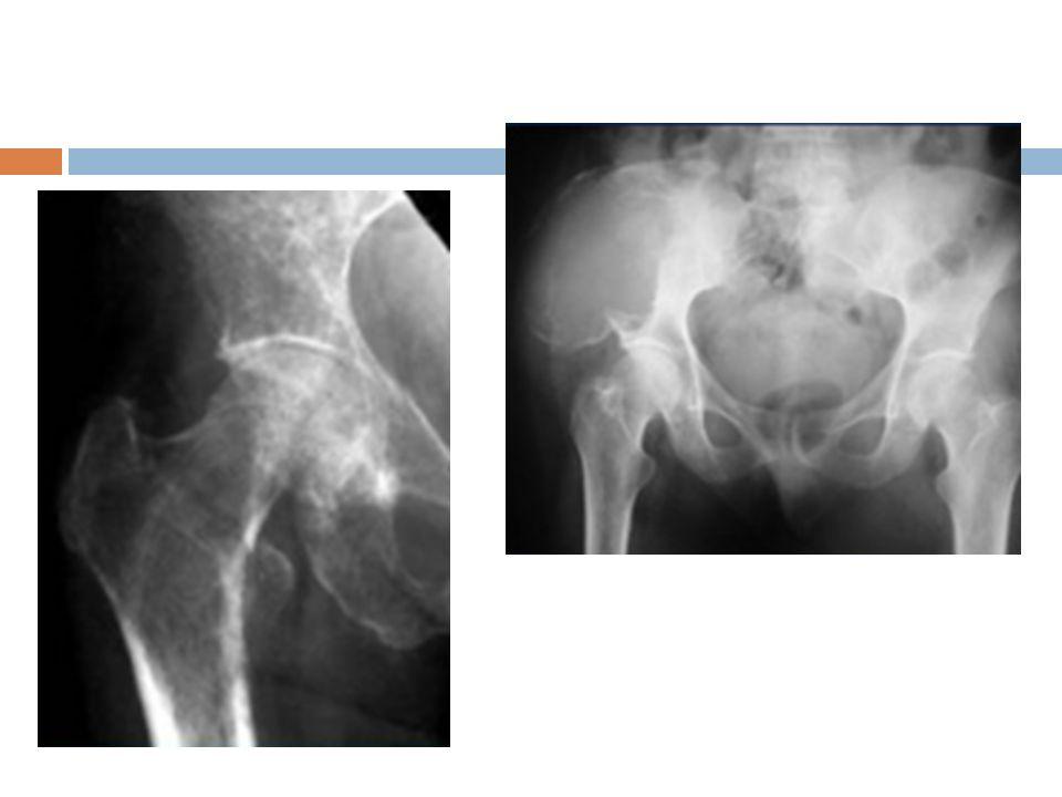 Tumores óseos Rx método inicial TAC estadificación RM valoración de médula y metástasis PET metástasis y actividad ósea