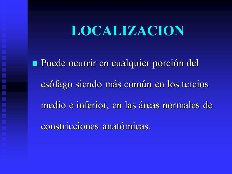 LOCALIZACION Puede ocurrir en cualquier porción del esófago siendo más común en los tercios medio e inferior, en las áreas normales de constricciones