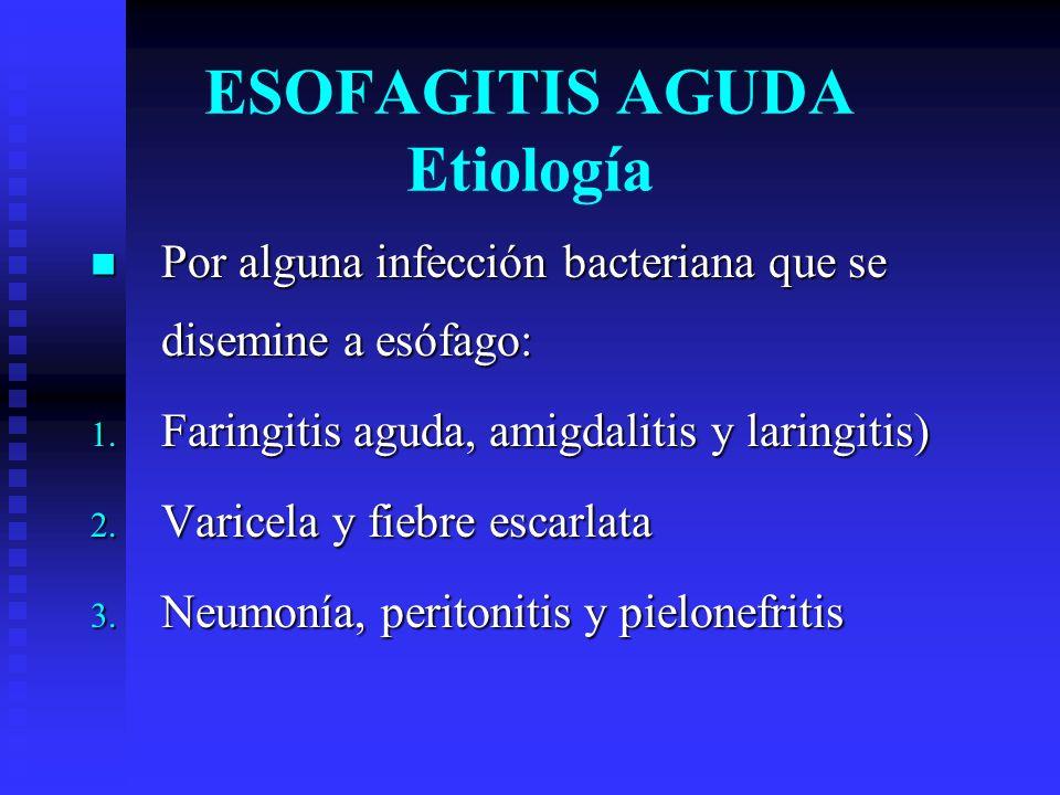 ESOFAGITIS AGUDA Etiología Por alguna infección bacteriana que se disemine a esófago: Por alguna infección bacteriana que se disemine a esófago: 1. Fa
