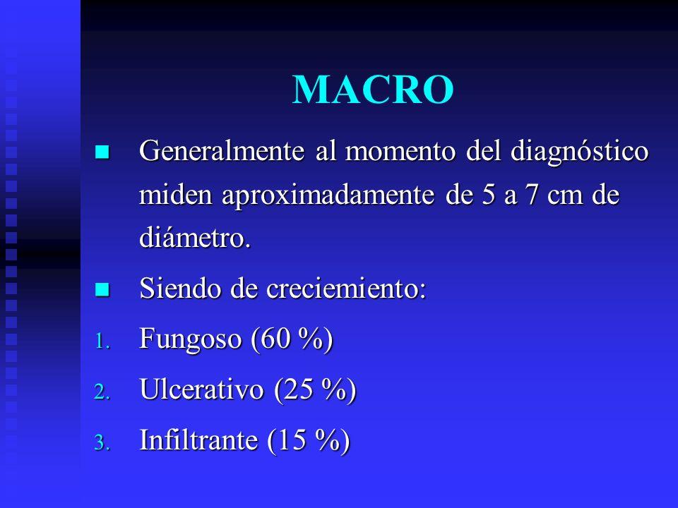 MACRO Generalmente al momento del diagnóstico miden aproximadamente de 5 a 7 cm de diámetro. Generalmente al momento del diagnóstico miden aproximadam
