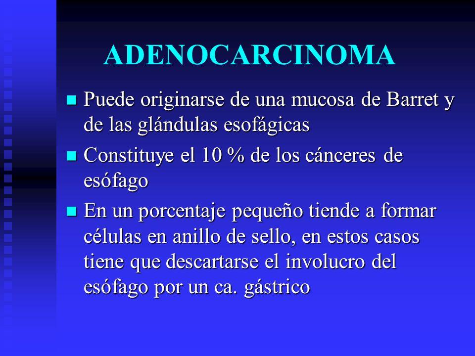 ADENOCARCINOMA Puede originarse de una mucosa de Barret y de las glándulas esofágicas Puede originarse de una mucosa de Barret y de las glándulas esof