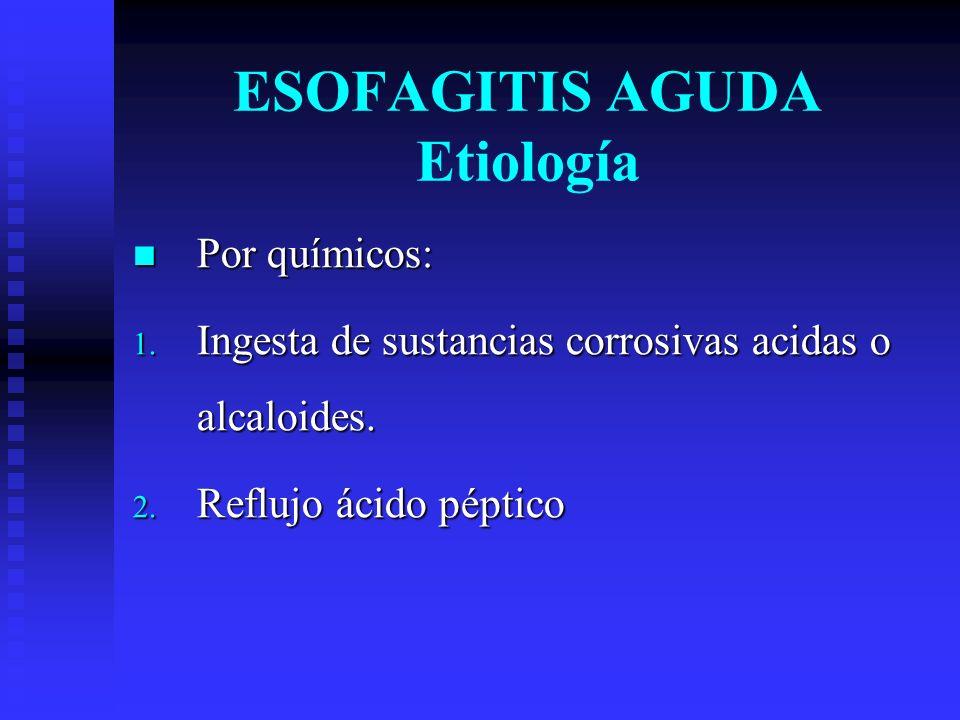 Por químicos: Por químicos: 1. Ingesta de sustancias corrosivas acidas o alcaloides. 2. Reflujo ácido péptico ESOFAGITIS AGUDA Etiología
