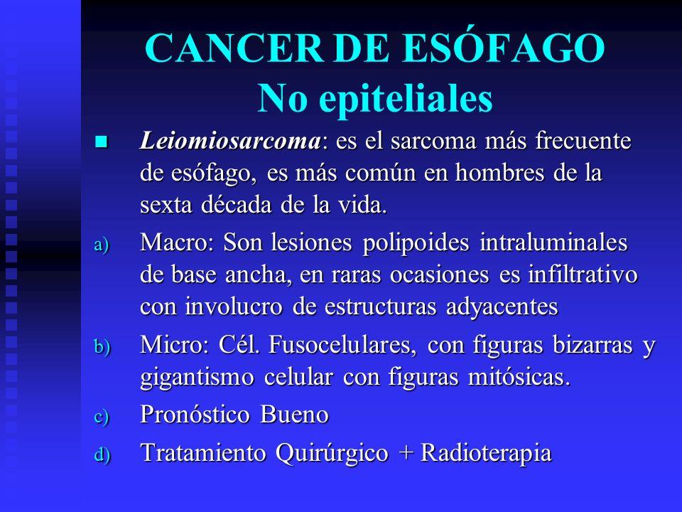 CANCER DE ESÓFAGO No epiteliales Leiomiosarcoma: es el sarcoma más frecuente de esófago, es más común en hombres de la sexta década de la vida. Leiomi