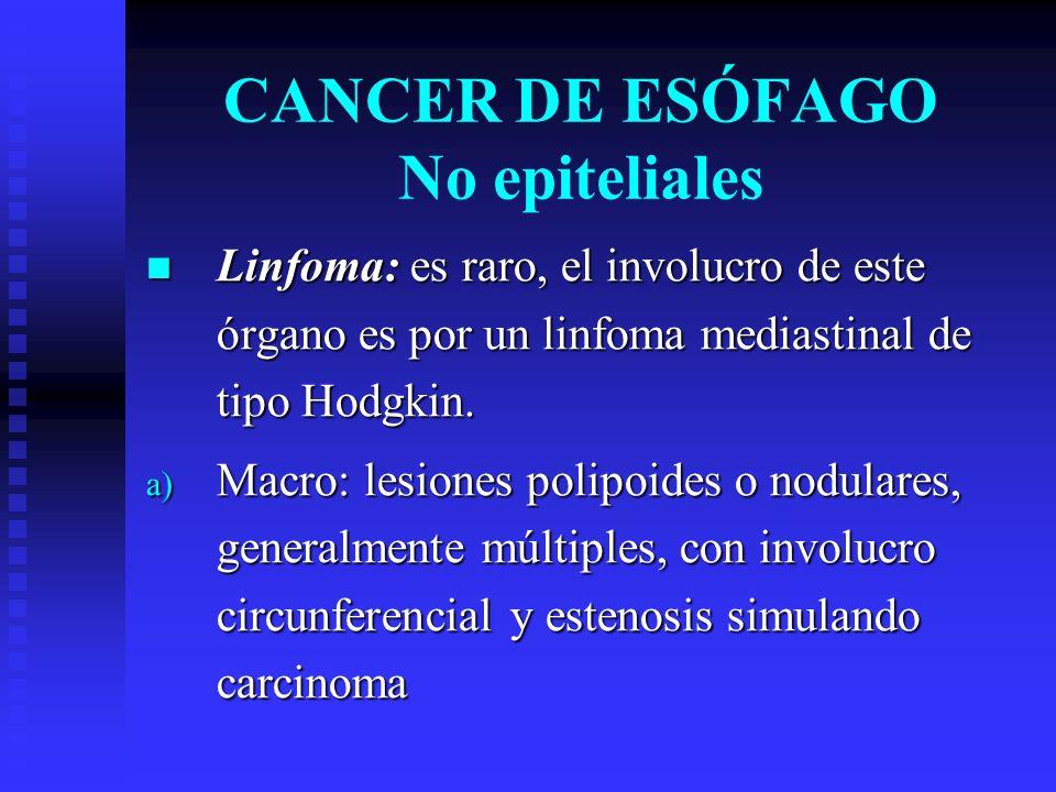 Linfoma: es raro, el involucro de este órgano es por un linfoma mediastinal de tipo Hodgkin. Linfoma: es raro, el involucro de este órgano es por un l