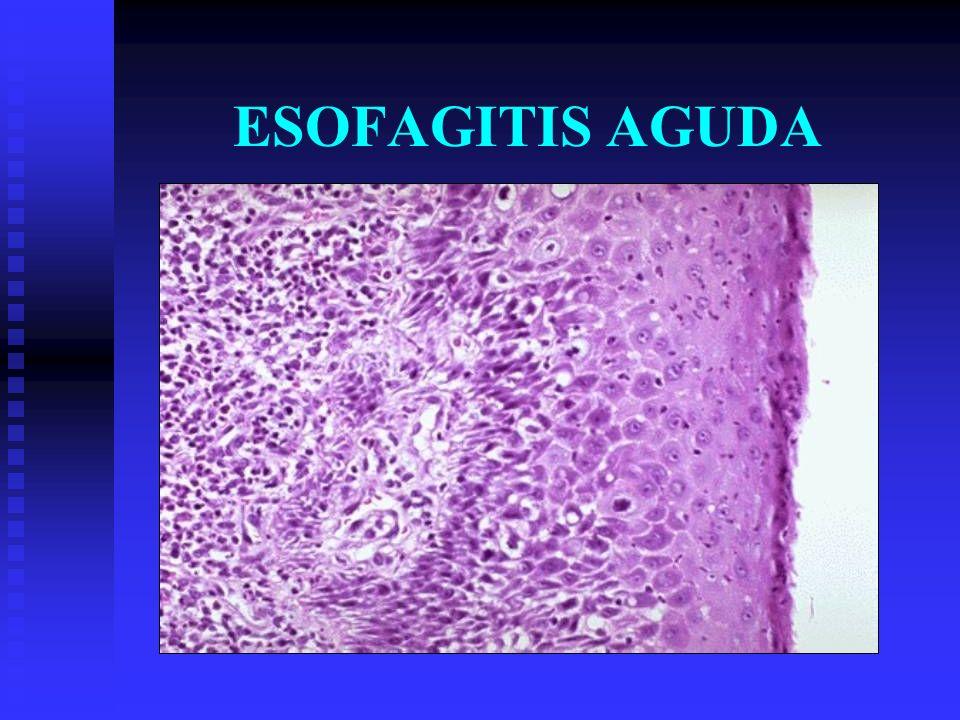 ESOFAGITIS CRÓNICA Etiología Por alguna infección bacteriana que se disemine a esófago Por alguna infección bacteriana que se disemine a esófago 1.