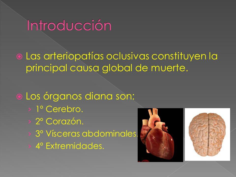 Las arteriopatías oclusivas constituyen la principal causa global de muerte.