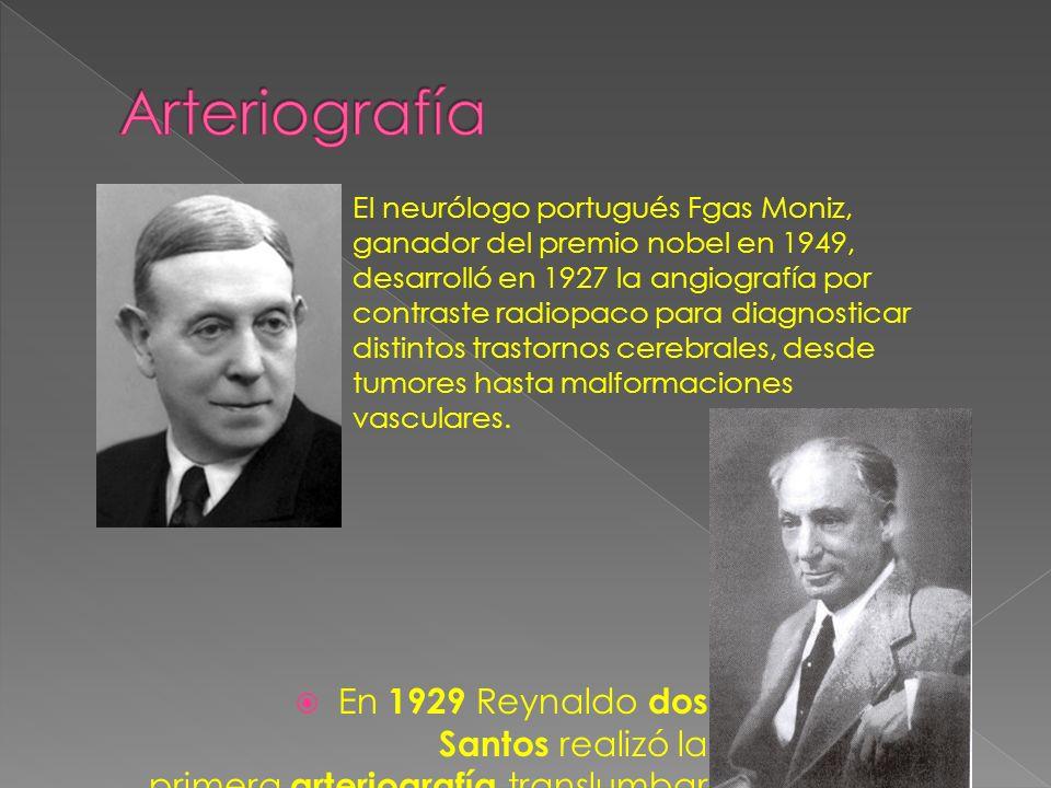 En 1929 Reynaldo dos Santos realizó la primera arteriografía translumbar El neurólogo portugués Fgas Moniz, ganador del premio nobel en 1949, desarrolló en 1927 la angiografía por contraste radiopaco para diagnosticar distintos trastornos cerebrales, desde tumores hasta malformaciones vasculares.