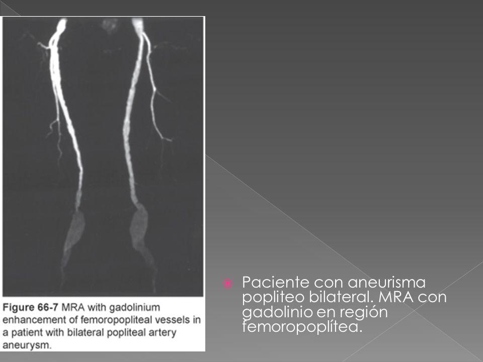 Paciente con aneurisma popliteo bilateral. MRA con gadolinio en región femoropoplítea.