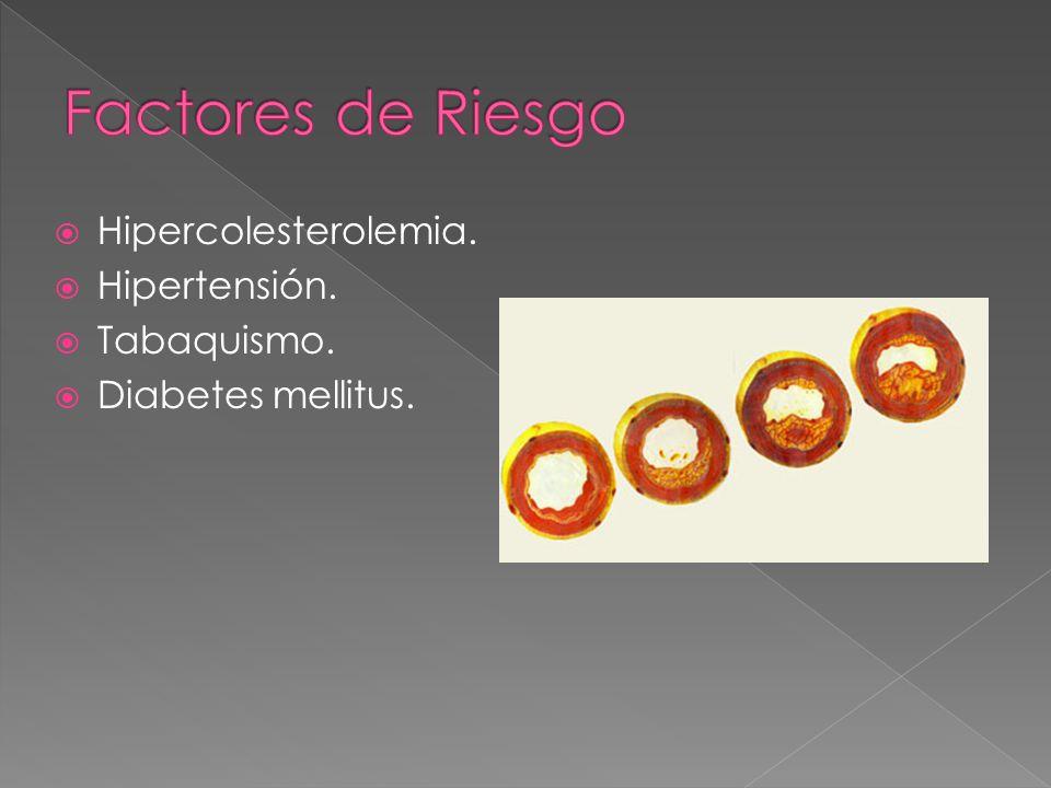 Hipercolesterolemia. Hipertensión. Tabaquismo. Diabetes mellitus.