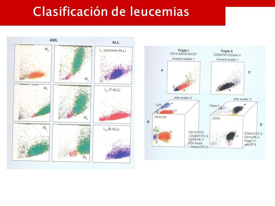 Clasificación de leucemias