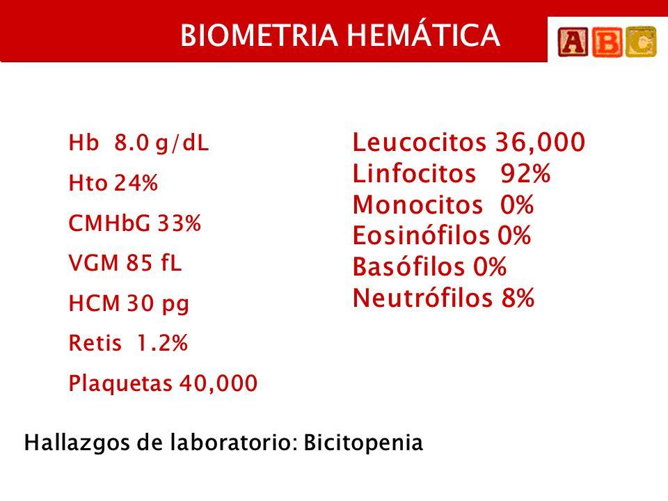 BIOMETRIA HEMÁTICA Hb 8.0 g/dL Hto 24% CMHbG 33% VGM 85 fL HCM 30 pg Retis 1.2% Plaquetas 40,000 Leucocitos 36,000 Linfocitos 92% Monocitos 0% Eosinófilos 0% Basófilos 0% Neutrófilos 8% Hallazgos de laboratorio: Bicitopenia Posibilidad diagnóstica: