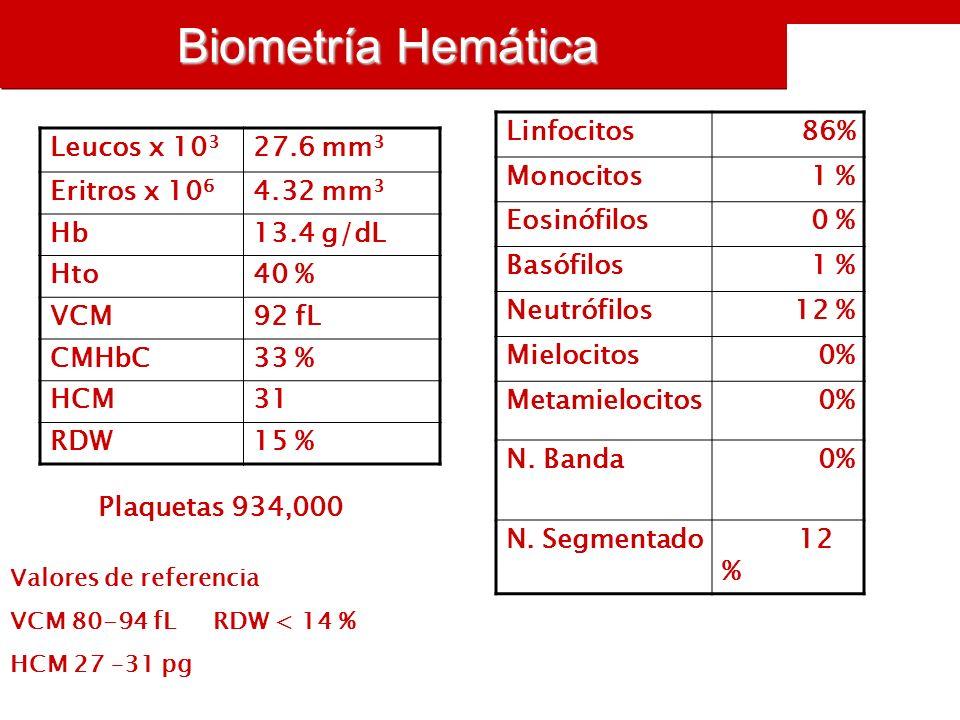 Biometría Hemática Leucos x 10 3 27.6 mm 3 Eritros x 10 6 4.32 mm 3 Hb13.4 g/dL Hto40 % VCM92 fL CMHbC33 % HCM31 RDW15 % Linfocitos86% Monocitos1 % Eosinófilos0 % Basófilos1 % Neutrófilos12 % Mielocitos0% Metamielocitos0% N.