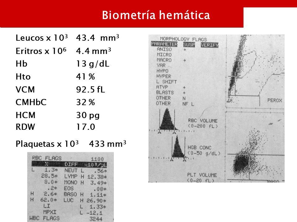 Leucos x 10 3 43.4 mm 3 Eritros x 10 6 4.4 mm 3 Hb13 g/dL Hto41 % VCM92.5 fL CMHbC32 % HCM RDW 30 pg 17.0 Biometría hemática Plaquetas x 10 3 433 mm 3
