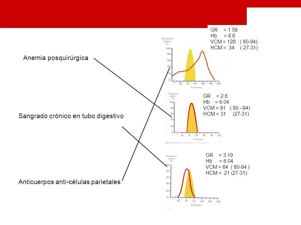 GR = 2.8 Hb = 6.04 VCM = 91 ( 80 –94) HCM = 31 (27-31) GR = 1.58 Hb = 6.8 VCM = 128 ( 80-94) HCM = 34 ( 27-31) GR = 3.19 Hb = 6.04 VCM = 64 ( 80-94 ) HCM = 21 (27-31) Anemia posquirúrgica Sangrado crónico en tubo digestivo Anticuerpos anti-células parietales
