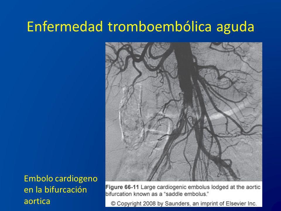 Enfermedad tromboembólica aguda Embolo cardiogeno en la bifurcación aortica