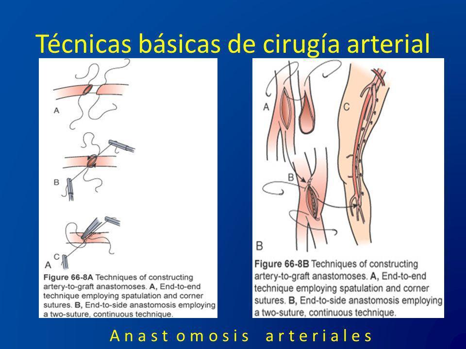 Técnicas básicas de cirugía arterial A n a s t o m o s i s a r t e r i a l e s